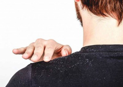 علت ایجاد شوره سر و درمان آن
